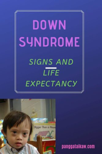 Down syndrome signs and life expectancy