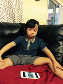 Down syndrome boy with decreased muscle tone