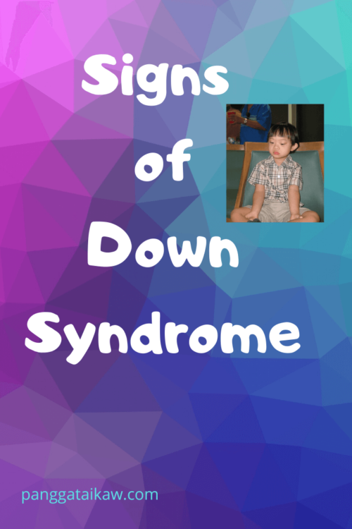 Down Syndrome-Signs and Life Expectancy
